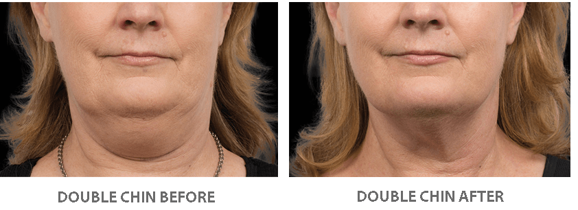 Fat freezing double chin beauty and laser clinic manly
