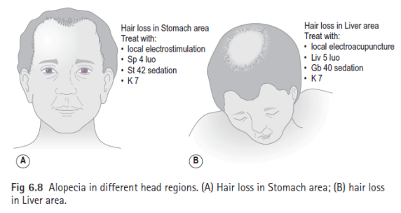 acupuncture for hair loss beauty and laser clinic manly