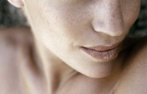 age spot removal | Beauty and laser Clinic