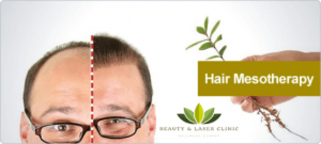 mesotherapy for hair loss at beauty and laser clinic manly, sydney northern beaches and north shore