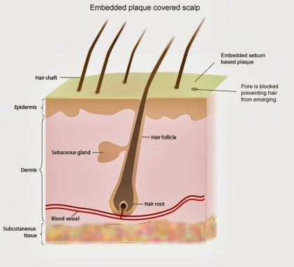 acupuncture alopecia - beauty and laser clinic MANLY