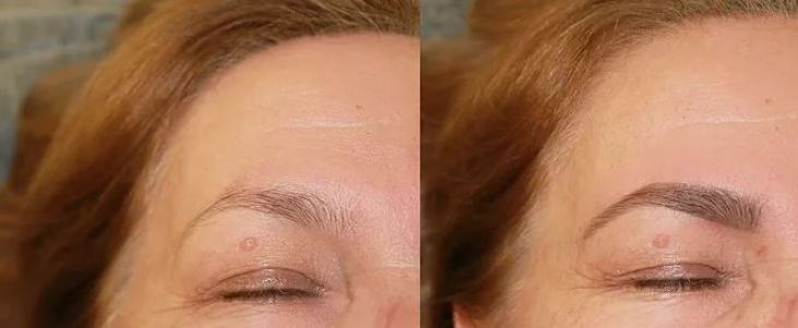 HD Brows | Beauty and laser clinic