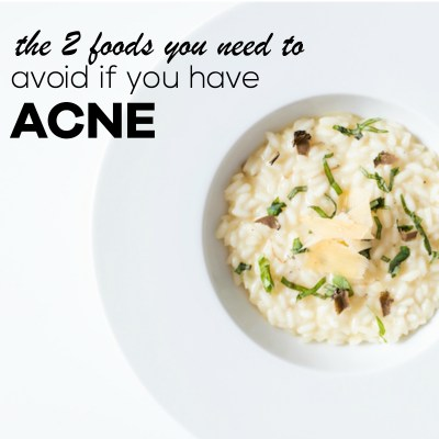 The 2 foods that you need to get rid of if you have acne