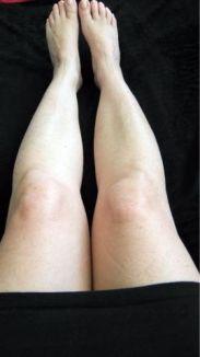 witte benen
