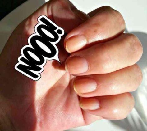 nagels-lelijk