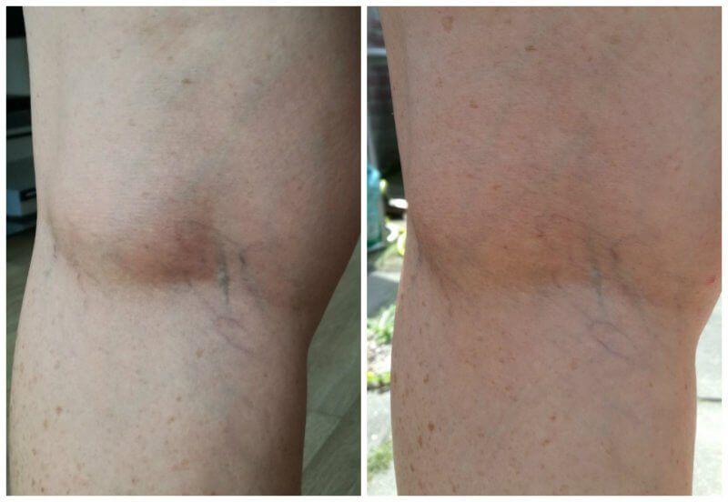collage voor en na biomed 26 juli tot 23 augustus 2