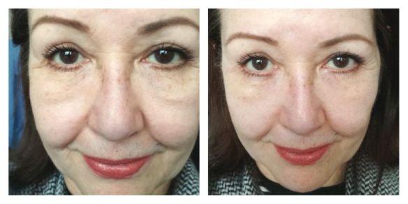 collage voor en na remescar en my pretty eyes