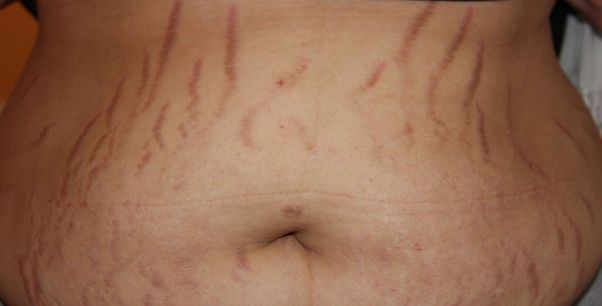 Causes of Stretch Marks – Definition Types Best ...