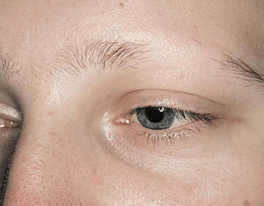 Eyebrows Falling Out Causes Hair Loss Not Growing Back
