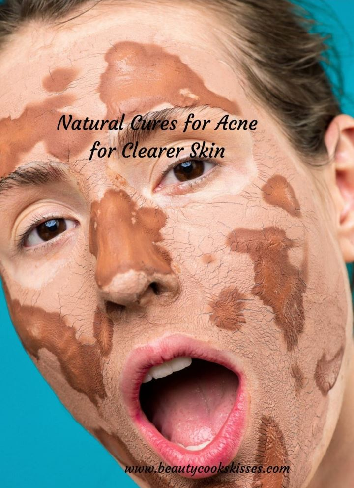 Natural Cures for Acne Clay Mask