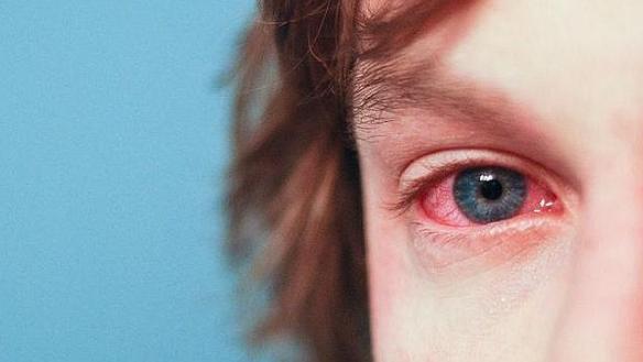 Maquiagem para alérgicos