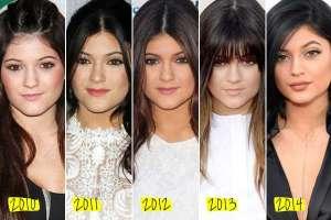 kylie-jenner-antes-e-depois-300x200 Lábios da Kylie Jenner