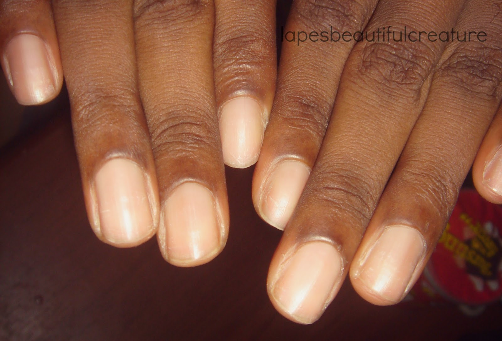 Disadvantages Of Acrylic Nails And How To Repair Damage To Natural ...