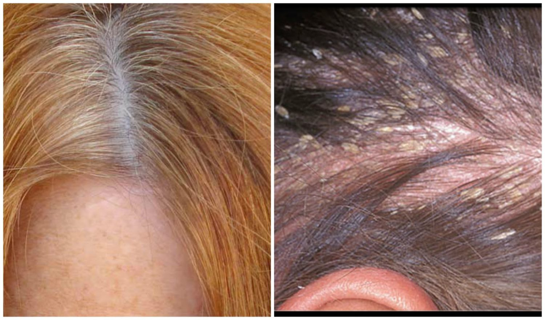 dry scalp dandruff
