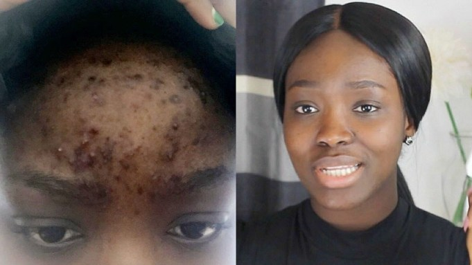 acne and dark spots