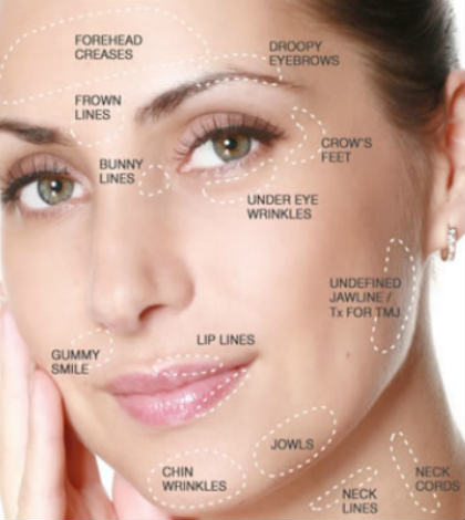 Say No To Aging With Sculptra Injections