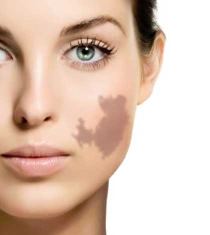 How To Get Rid Of Birthmarks Naturally And Safely