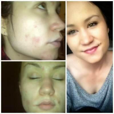 Manuka Honey Acne Before and After photo 1