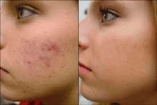 argan oil acne before and after 1