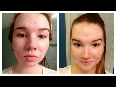 Sudocrem Acne Before and After picture 1