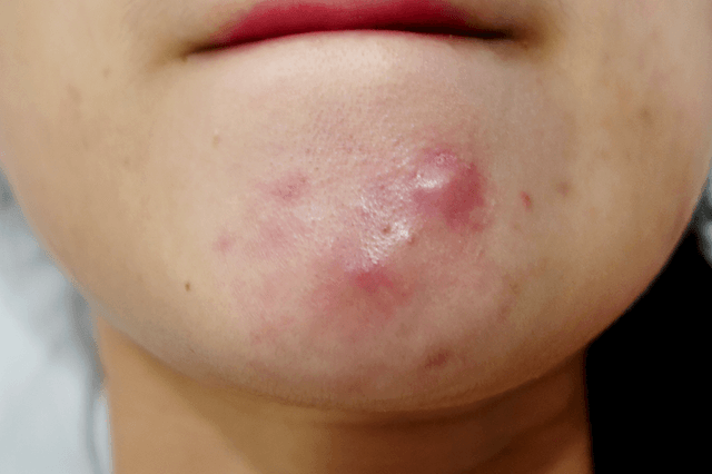 cystic acne on chin
