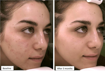 Benzoyl Peroxide for Acne Before and After Photos 1