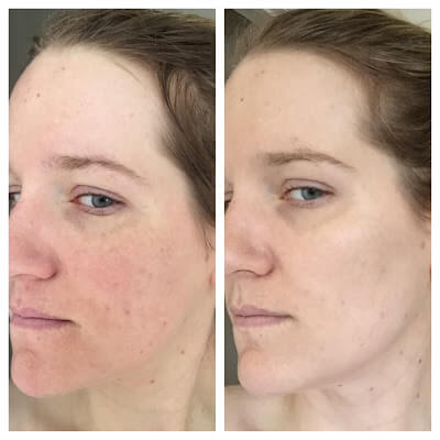 Benzoyl Peroxide for Acne Before and After Photos 4