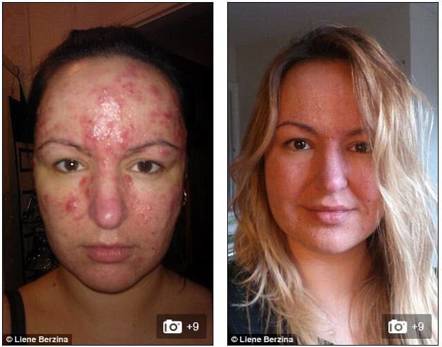 colloidal silver acne before and after picture
