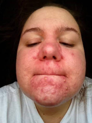 acne around mouth picture 4