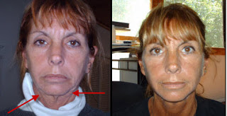 how to get rid of saggy neck without surgery