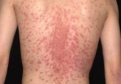 Christmas tree rash picture 1