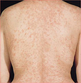 Christmas Tree Rash Causes Treatment Home Remedies Pictures And