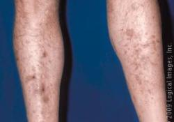 Dark spots on legs due to diabetic dermopathy.