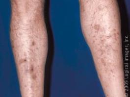 Dark spots on legs due to diabetic dermopathy.
