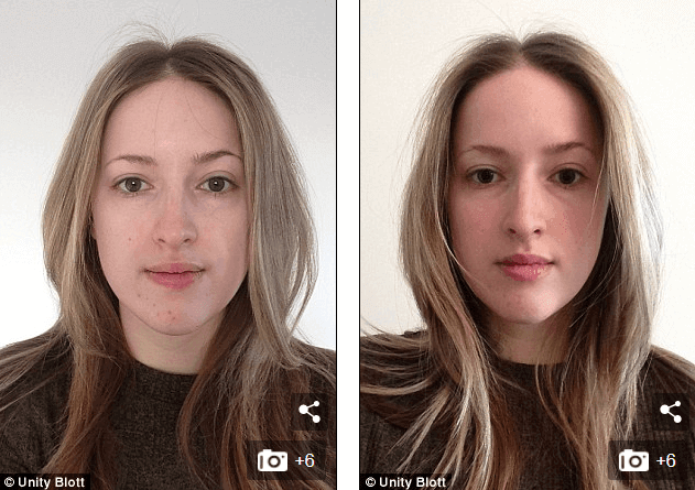 Light therapy for acne before and after picture 2