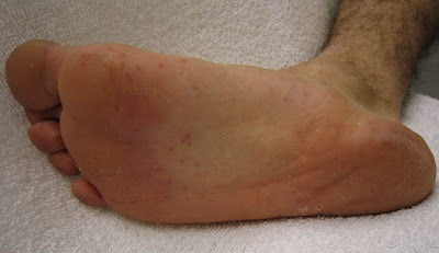 red spots on feet caused by hand, foot and mouth disease