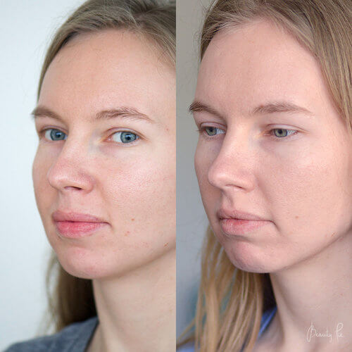 Clarisonic mia 2 before after
