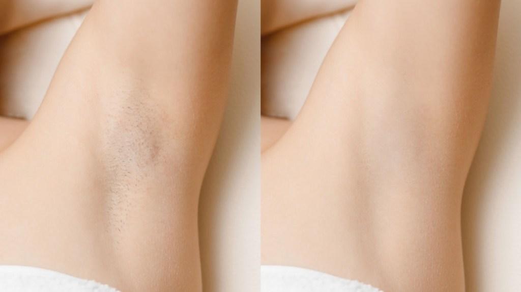Voor en na laser ontharen behandeling