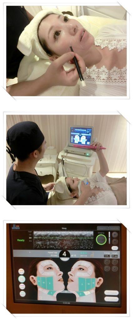 【臺中拉皮】音波拉皮美國機+童顏針到臺中整形外科診所施打效果超好的 - BeautyToday美麗線上