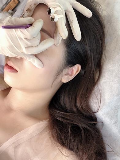繡眉會痛嗎