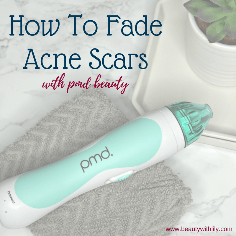 How To Fade Acne Scars With PMD Beauty // Beauty With Lily