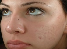 Choosing the Best Herbal Treatment for Scars