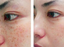 How to Choose the Best Freckle Treatment