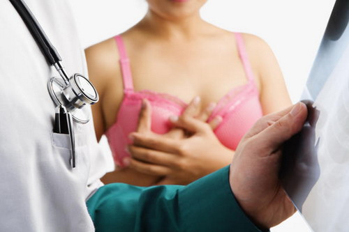 Breast Lift Scars
