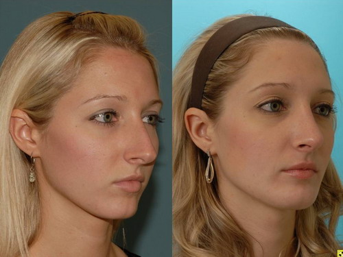 Cosmetic Nose Inserts