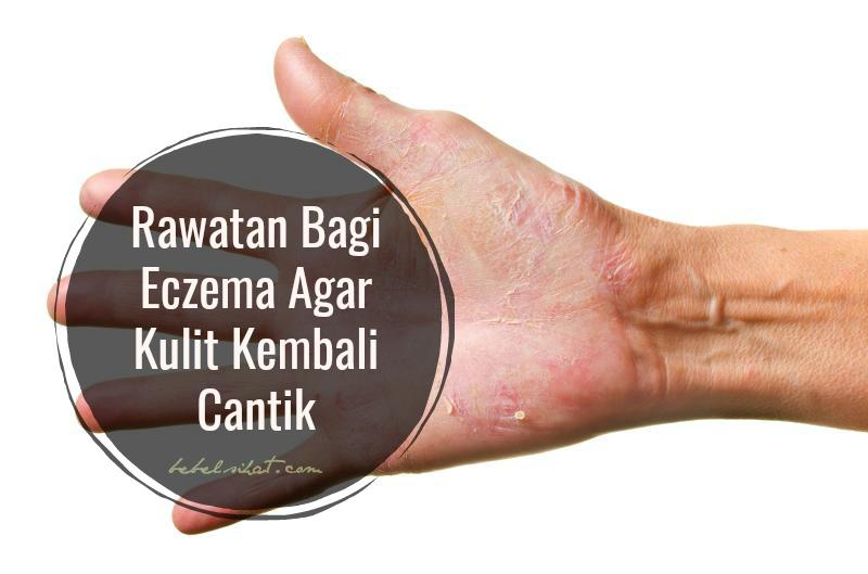 Rawatan Bagi Eczema Agar Kulit Kembali Cantik