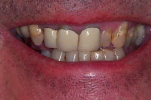 Emax porcelain crowns and veneers male in Croydon  Cosmetic Dentistry Blog  Dentists in Town