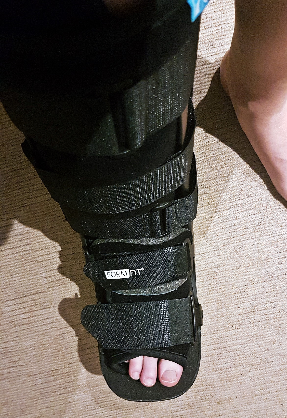 My walking boot - One Broken Foot, Two Chronic Illnesses, and the Importance of Positivity by BeckyBecky Blogs