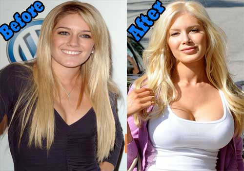 Kate Winslet Plastic Surgery And After