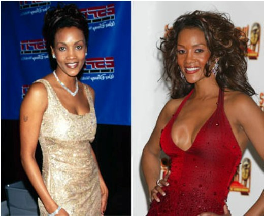 Breast Implants Gone Wrong Pictures Before And After ...